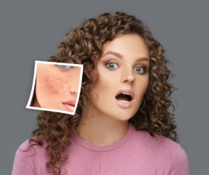 turmeric redness reducer